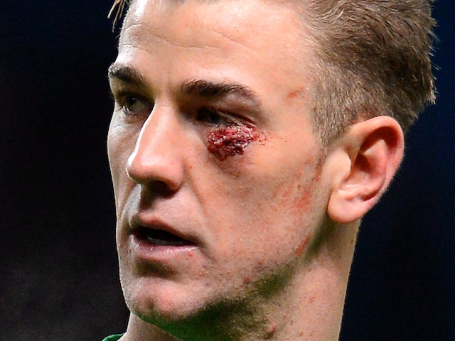 Manchester City's English goalkeeper Joe Hart leaves the pitch sporting a cut to his face after the English Premier League football match against Crystal Palace on December 28, 2013